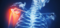 BONE AND JOINT DISORDERS